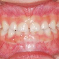 つくばこうた歯科クリニック|歯科矯正イメージ