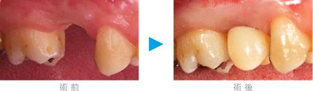 つくばこうた歯科クリニック|インプラント図解