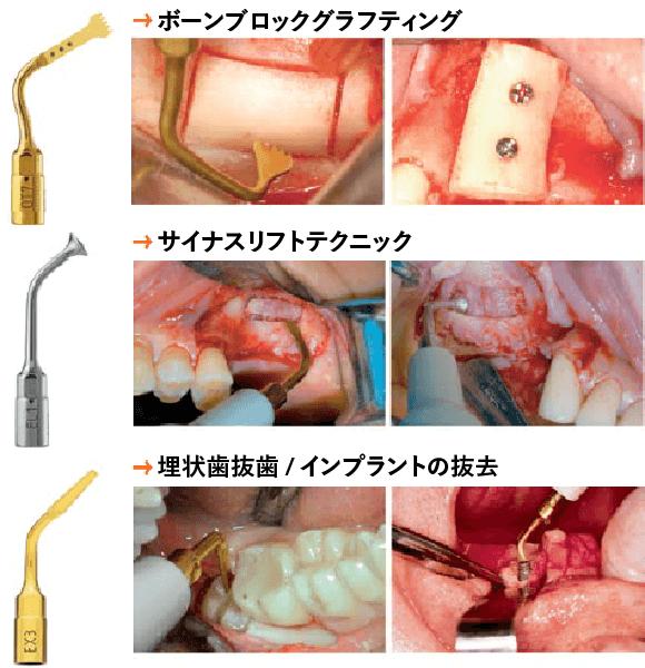 つくばこうた歯科クリニック|最新設備機器イメージ
